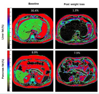 Why weight loss produces remission of type 2 diabetes in some patients
