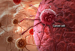 Cases Of Cancer And Cancer Related Death Rising Globally