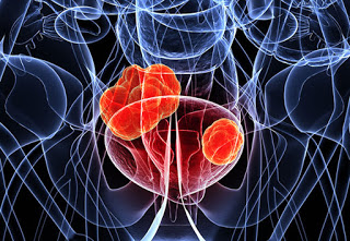 Early menopause raises bladder cancer risk for smokers