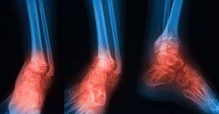Double-duty hydrogel attacks bacteria and encourages bone regrowth