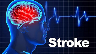 Residing in a noisy environment increases the risk of suffering a more serious stroke