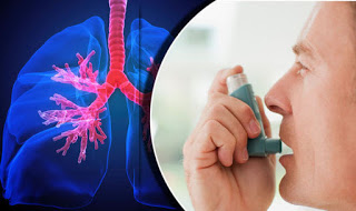 Ten(10) facts you need to know about asthma