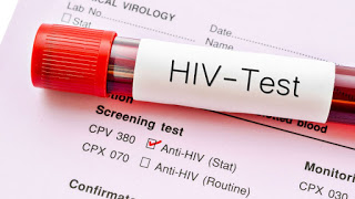 HIV: Innovative WHO testing recommendations aim to expand treatment coverage
