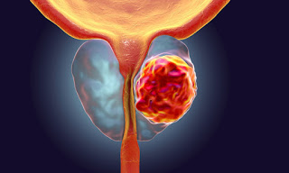 Physical activity reduces risk of prostate cancer