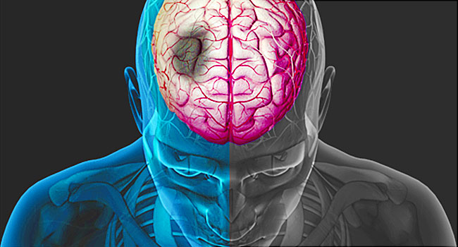 Risk factors for stroke, warning signs and how to recognize it