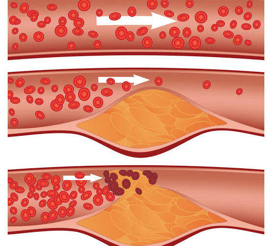 The Good And The Bad Cholesterol